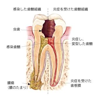 感染した歯髄組織