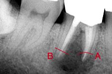 X線写真では良好に見えても、根尖周囲に黒く骨吸収像が生じた失敗例。