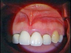 外科的歯内療法